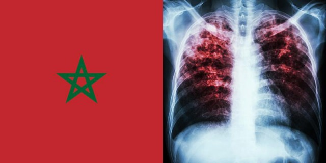 Morocco Records Over 27,000 New Cases of Tuberculosis Every Year
