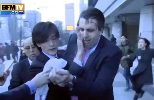 American Ambassador to Korea Attacked With a Blade