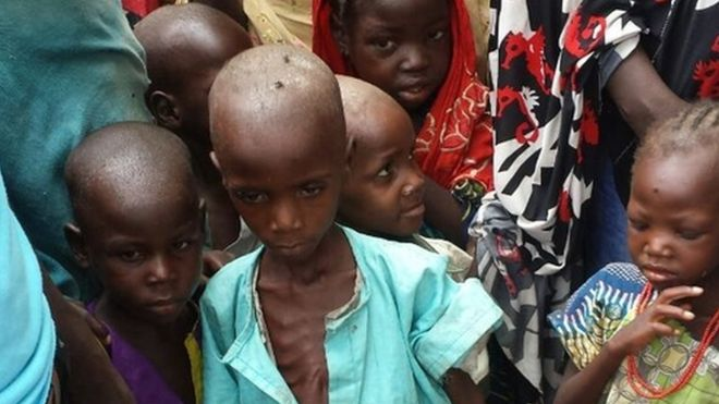 Aid workers say one in five children is severely malnourished