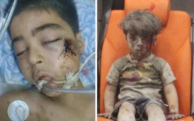 Omran's Brother Dies of Injuries in Hospital