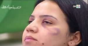 2M Broadcasts Women's Makeup Tutorial on How to Hide Traces of Domestic Violence