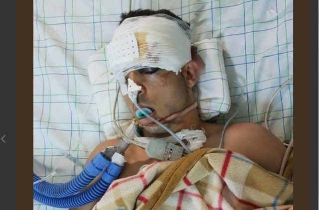 Al Hoceima July 20 March: Protester Seriously Injured, Taken to Hospital in Rabat