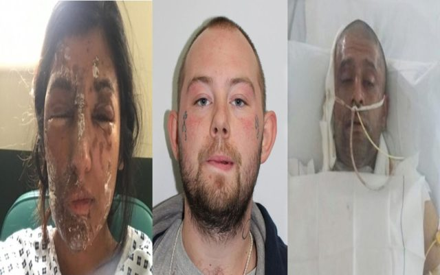 British Refuses to Classify Attack With Acid on Muslim Couple as Terror Attack