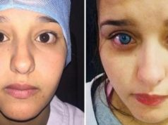 Africa's First Eye Color Surgery Occurs in Morocco