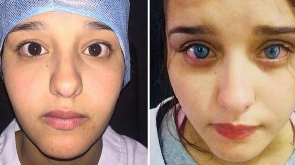 Africa\'s First Eye Color Surgery Occurs in Morocco | Morocco World News