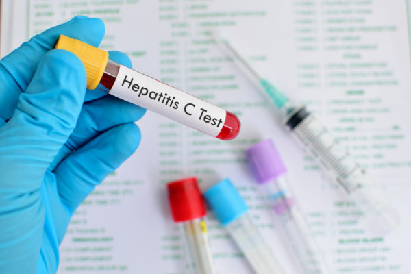 Millions of people unknowingly infected with hepatitis