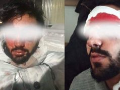 Moroccan Students in Ukraine Continue to Suffer Police Violence