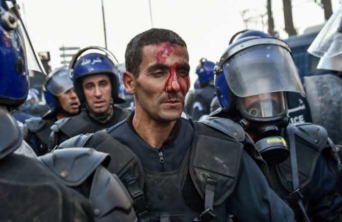 Dozens Injured in Algeria's Anti-Bouteflika Protests