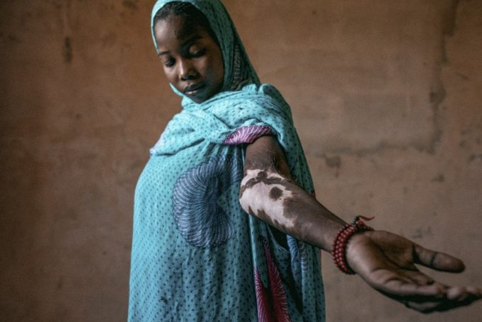 Through the Lens: Moroccan Photographer Captures Injustice